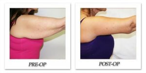 phoca_thumb_l_dr-begovic-arm-lift-before-after-001