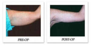 phoca_thumb_l_mandris-brachioplasty-001