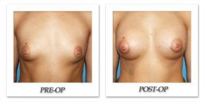 phoca_thumb_l_before-after-013