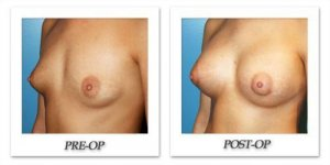 phoca_thumb_l_before-after-014