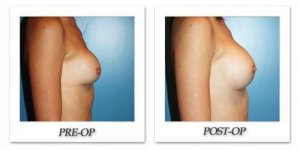 phoca_thumb_l_before-after-015