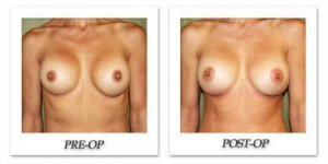 phoca_thumb_l_before-after-016