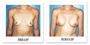 phoca_thumb_l_before-after-017