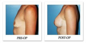 phoca_thumb_l_before-after-018