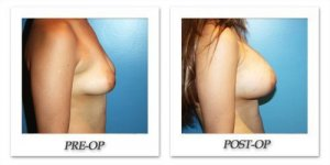 phoca_thumb_l_before-after-020