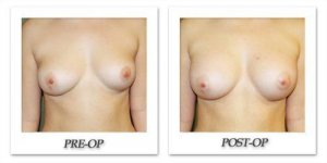 phoca_thumb_l_before-after-021