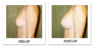 phoca_thumb_l_before-after-022