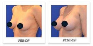 phoca_thumb_l_breast-augmentation-1