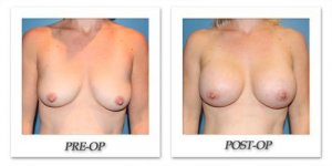phoca_thumb_l_breastaugmentation2016