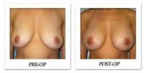 phoca_thumb_l_bruno-breast-augmentation-001