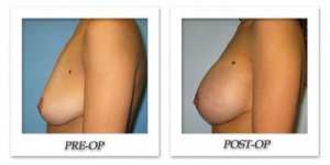 phoca_thumb_l_bruno-breast-augmentation-003