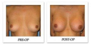 phoca_thumb_l_bruno-breast-augmentation-004