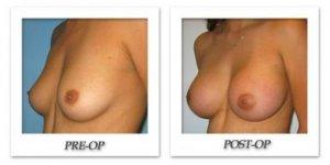 phoca_thumb_l_bruno-breast-augmentation-005