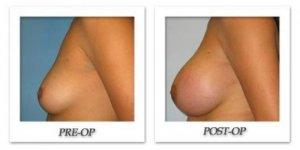 phoca_thumb_l_bruno-breast-augmentation-006