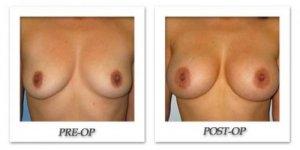phoca_thumb_l_bruno-breast-augmentation-007
