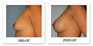 phoca_thumb_l_bruno-breast-augmentation-009