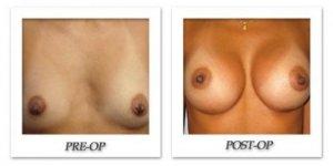 phoca_thumb_l_bruno-breast-augmentation-010