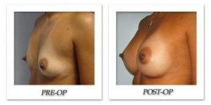 phoca_thumb_l_bruno-breast-augmentation-011