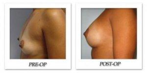 phoca_thumb_l_bruno-breast-augmentation-012