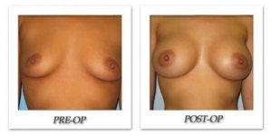phoca_thumb_l_bruno-breast-augmentation-013