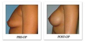 phoca_thumb_l_bruno-breast-augmentation-014