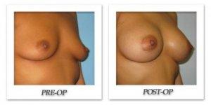 phoca_thumb_l_bruno-breast-augmentation-015