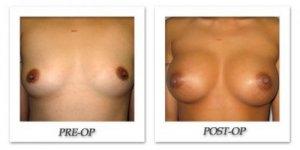 phoca_thumb_l_bruno-breast-augmentation-016