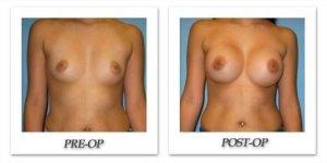 phoca_thumb_l_bruno-breast-augmentation-017
