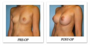 phoca_thumb_l_bruno-breast-augmentation-018