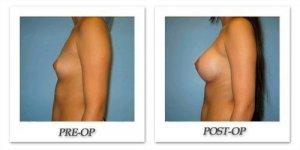phoca_thumb_l_bruno-breast-augmentation-019