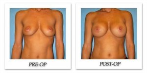 phoca_thumb_l_bruno-breast-augmentation-020