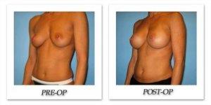 phoca_thumb_l_bruno-breast-augmentation-021