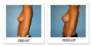 phoca_thumb_l_bruno-breast-augmentation-022