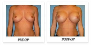 phoca_thumb_l_bruno-breast-augmentation-023