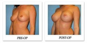 phoca_thumb_l_bruno-breast-augmentation-024