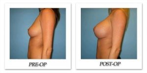 phoca_thumb_l_bruno-breast-augmentation-025