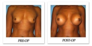 phoca_thumb_l_bruno-breast-augmentation-026