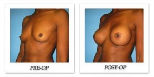 phoca_thumb_l_bruno-breast-augmentation-027