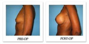 phoca_thumb_l_bruno-breast-augmentation-028