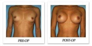 phoca_thumb_l_bruno-breast-augmentation-029