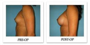 phoca_thumb_l_bruno-breast-augmentation-030
