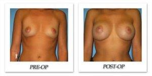phoca_thumb_l_bruno-breast-augmentation-031