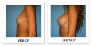 phoca_thumb_l_bruno-breast-augmentation-033