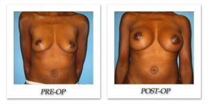 phoca_thumb_l_bruno-breast-augmentation-034