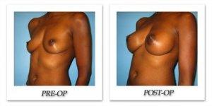 phoca_thumb_l_bruno-breast-augmentation-035