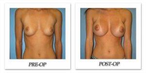 phoca_thumb_l_bruno-breast-augmentation-037