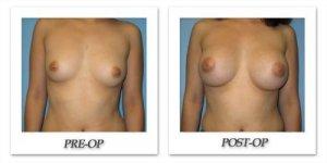 phoca_thumb_l_bruno-breast-augmentation-039