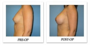 phoca_thumb_l_bruno-breast-augmentation-040
