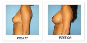 phoca_thumb_l_bruno-breast-augmentation-042