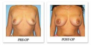 phoca_thumb_l_bruno-breast-augmentation-043